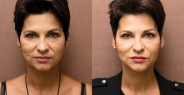 Chcete být dokonale krásné na svatbu? Objevte metody moderní estetické dermatologie